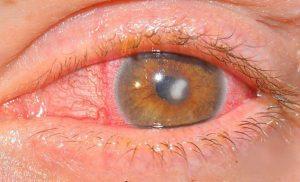 Офтан инструкция по применению глазные капли