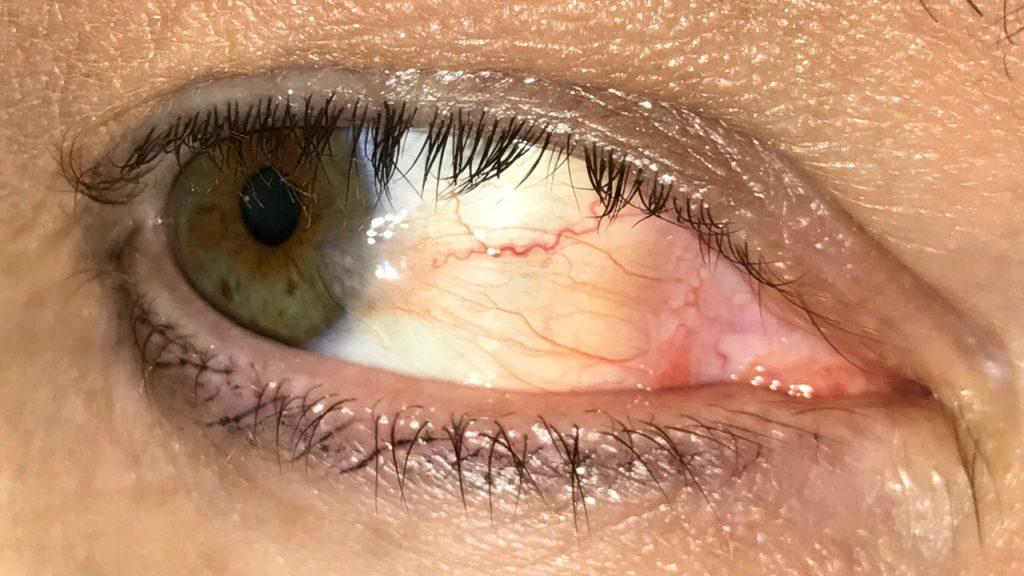 Болезнь глаза в картинках
