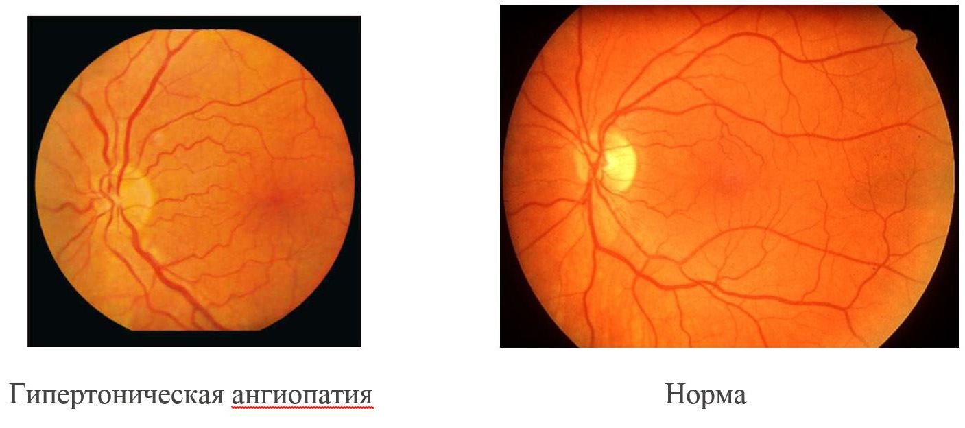Гипертоническая ангиопатия сетчатки обоих глаз что это