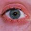 Причины и лечение аллергического блефарита